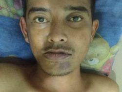 Jadi Korban Tabrak Lari di Jatinangor, Seorang Pria Tanpa Identitas Alami Hilang Ingatan